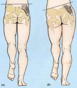 run injury-free with good alignment